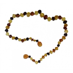 Healing Hazelwood Baltic Amber Necklace